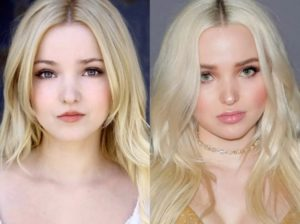 did dove cameron have plastic surgery, dove cameron before surgery