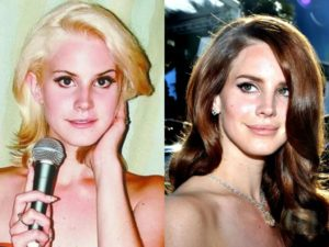 Lana Del Rey Before And After