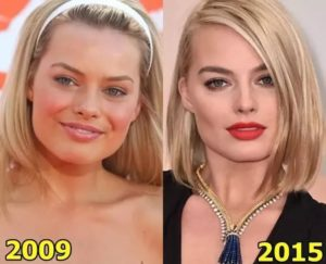 Margot Robbie plastic surgery