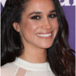 Meghan Markle plastic surgery