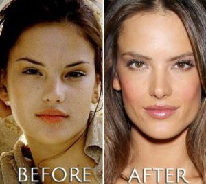 Alessandra Ambrosio Plastic Surgery