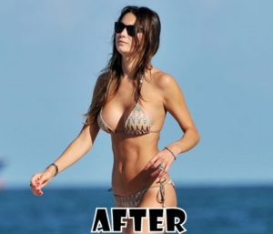 Behati Prsinloo Plastic Surgery