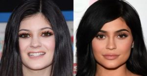 Kylie Jenner eyebrow surgery