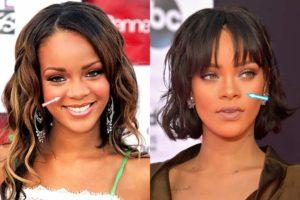 Rihanna Nose Job, Rihanna rhinoplasty, rihanna before and after nose job, rihanna before nose job, rihanna nose before and after, rihanna nose job before after, rihanna nose job