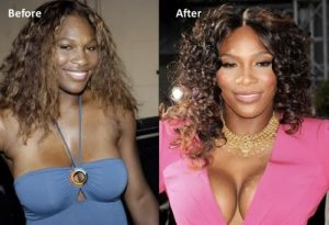 serena williams breast implants