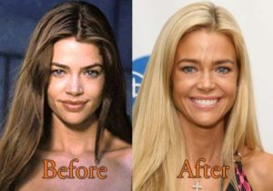 Denise Richards Plastic surgery before and after photos