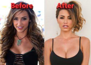 Ana Cheri's plastic surgery