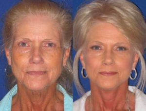 About facelift surgery