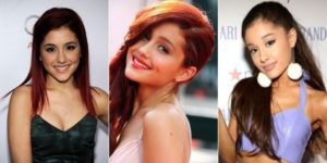 Ariana Grande'splastic surgery