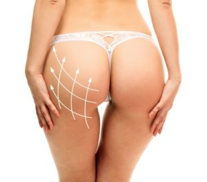 About liposuction surgery