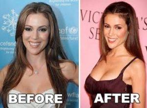 Alyssa Milano's Plastic Surgery
