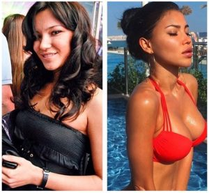 Svetlana Bilyalova's plastic surgery
