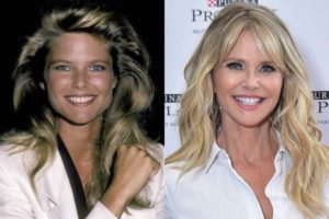 christy brinkley plastic surgery