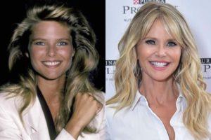 Christie Brinkley plastic surgery
