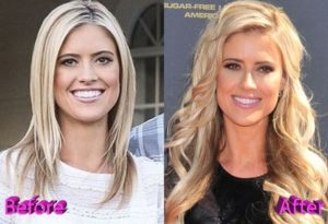 christina el moussa before and after