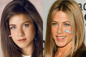 Jennifer Aniston rhinoplasty