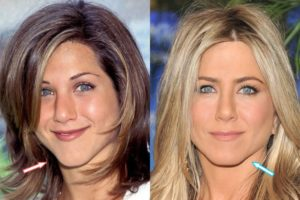 Jennifer Aniston implants, Jennifer Aniston face lift, Jennifer Aniston Chin implant