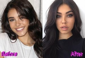 Madison Beer Lip augmentation