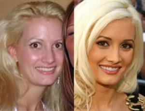 holly madison before surgery, holly madison rhinoplasty