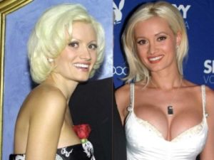 holly madison before plastic surgery