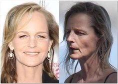 Helen Hunt bad plastic surgery