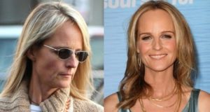 Helen Hunt plastic surgery