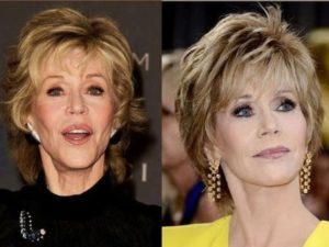 jane fonda face lift