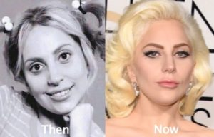 lady gaga lip injections