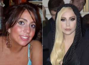 lady gaga before surgery