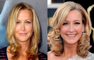 Lara Spencer Plastic Surgery
