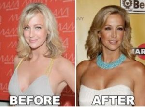 lara spencer boobs, lara spencer breast implants, lara spencer breasts