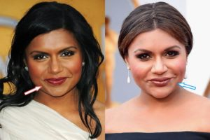 did mindy kaling get lip injections, mindy kaling lip fillers, mindy kaling lip filler, mindy kaling lip, mindy kaling lips