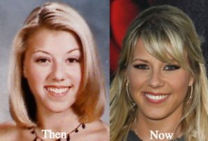 Jodie Sweetin plastic surgery