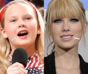 taylor swift before and after, taylor swift before after, taylor swift before and after teeth, taylor swift before veneers