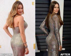 sofia vergara implants,