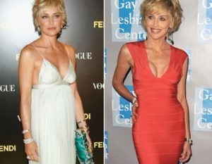 sharon stone breast implants