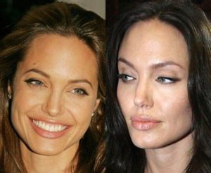 angelina jolie lip filler, angelina jolie lip injection, angelina jolie lip injections, angelina jolie lip job, angelina jolie lip surgery