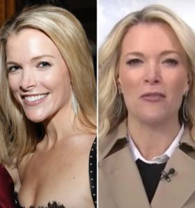 megyn kelly before plastic surgery, megyn kelly nose, megyn kelly nose job, megyn kelly's nose