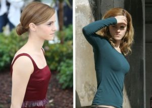did emma watson get breast implants, emma watson implants
