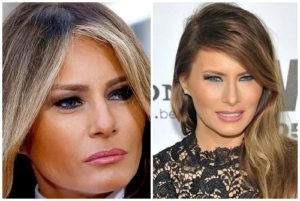 melania trump before after