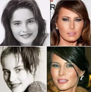 Melania Trump nose job, melania trump implants,
