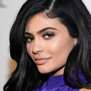 has kylie jenner had plastic surgery, what plastic surgery did kylie jenner have, kylie jenner before and after lips, kylie jenner before lip injections, kylie jenner before surgery and after surgery