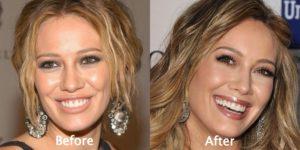 Hilary Duff Plastic Surgery