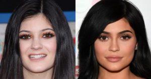Kylie Jenner eyebrow surgery