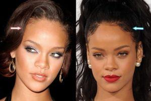 Rihanna's Plastic Surgery