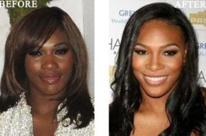Serena Williams Plastic Surgery: before and after