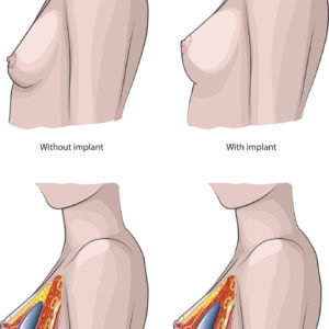 Breast Surgery: types