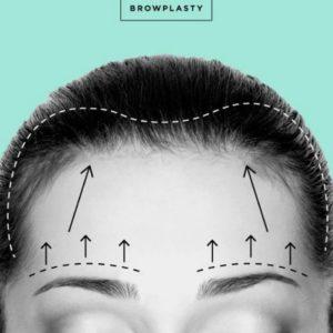 Browplasty surgery
