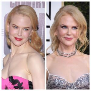 Nicole Kidman's Plastic Surgery