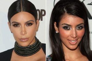 Kim Kardashian Plastic Surgeries